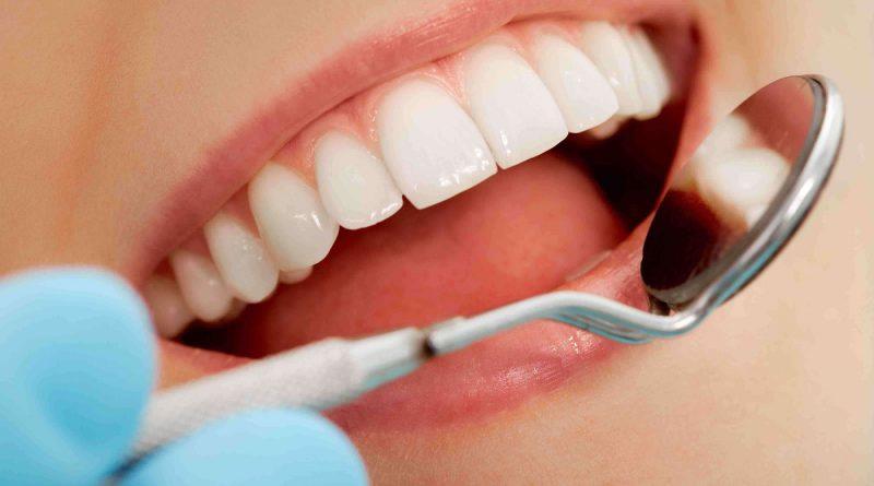 Как сделать идеальные зубы